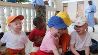 Photo of Nueva iniciativa de cuatro religiosas africanas frente a la persecución de niños albinos en Tanzania